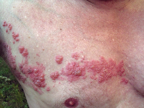Herpes_zoster_chest-Dermasurge-Clinic-Harley-St