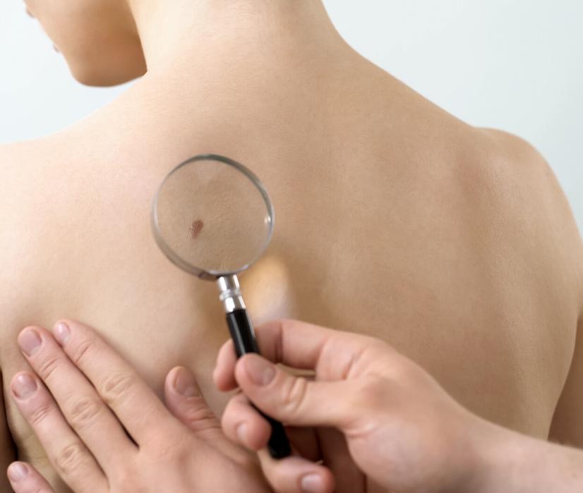 Medical Dermatology Treatments