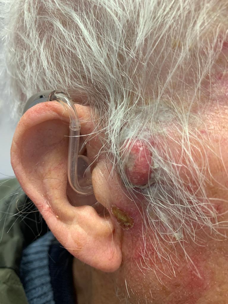 Skin cancer | Dermasurge Clinic | Harley St