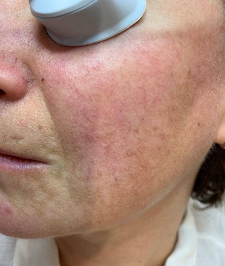 rosacea condition | Dermasurge Clinic | Harley St