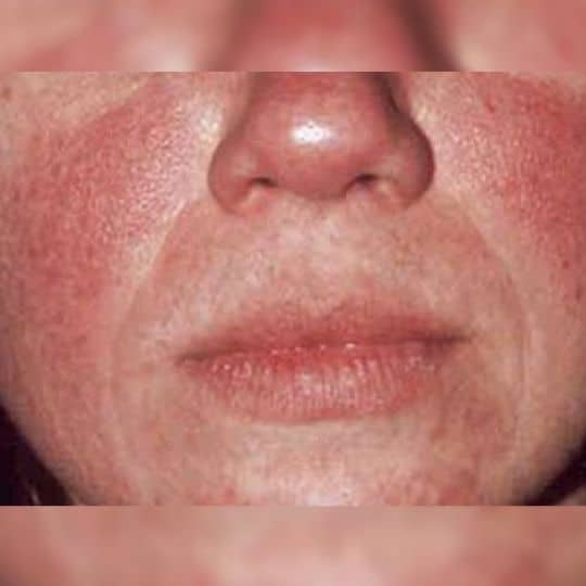 moderate acne on a patients cheek
