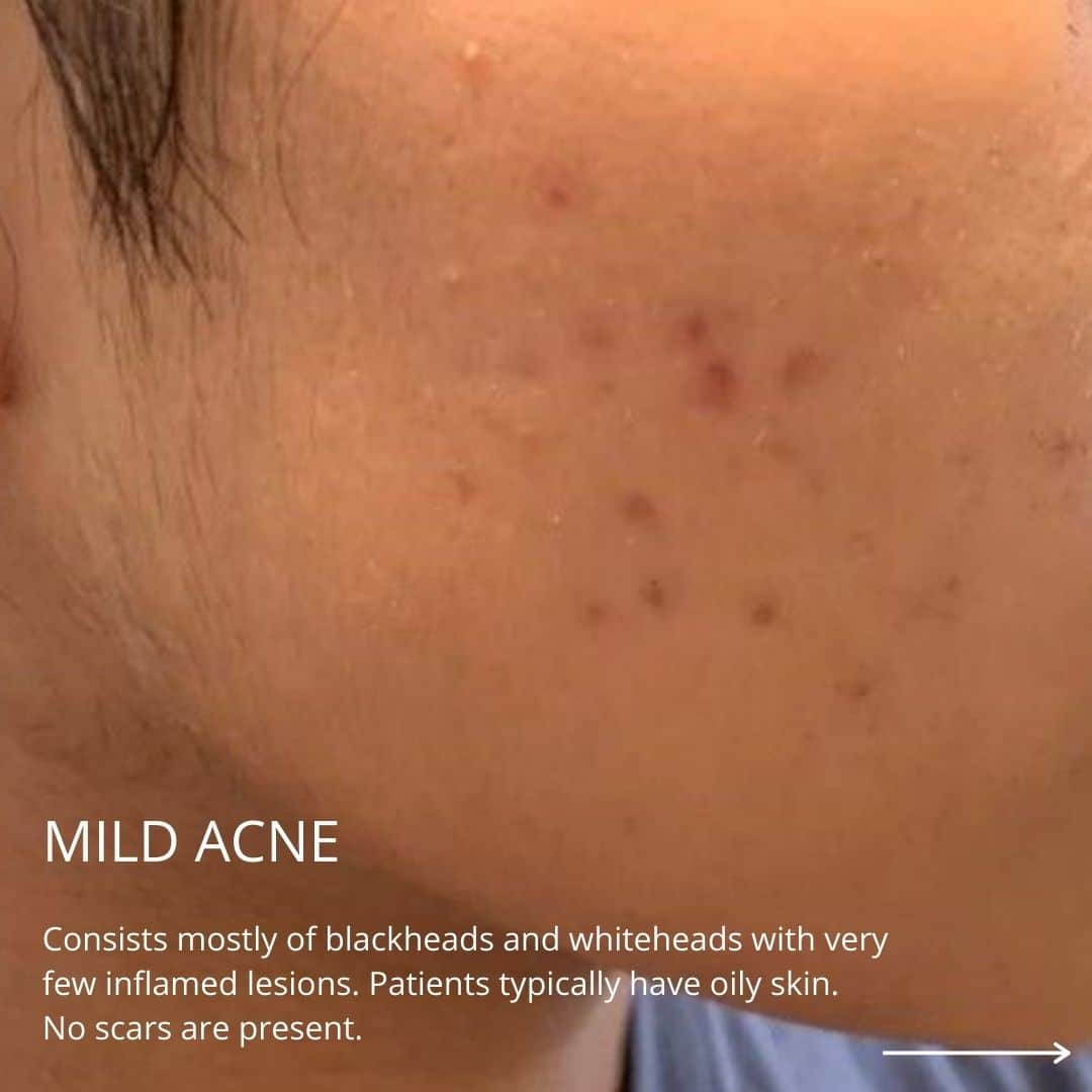 mild acne on the face of a patient
