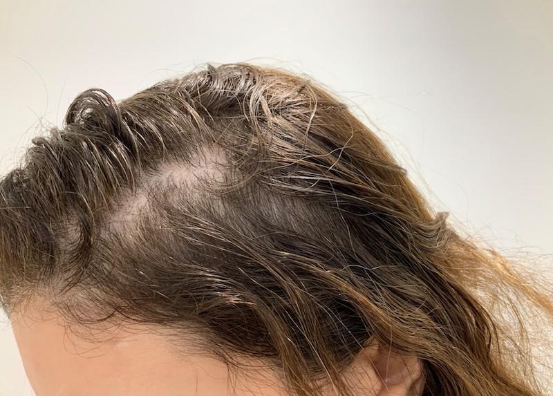 Hair-loss-condition-dermasurge-clinic-harley-street