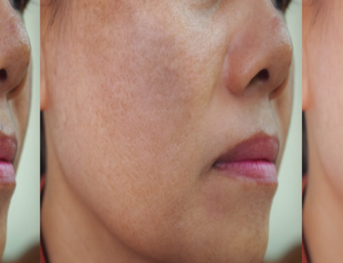 Treating Hyperpigmentation at Dermasurge