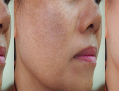 Treating Hyperpigmentation at Dermasurge