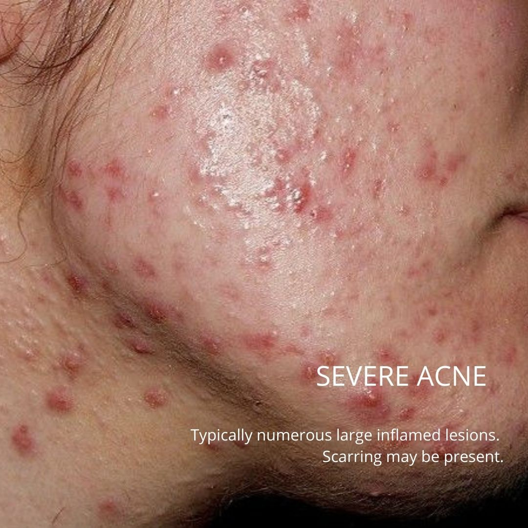 severe acne on a patient's chin