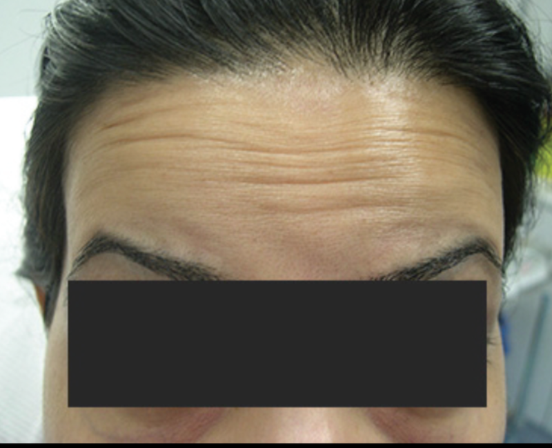 forehead-lines-dermasurge-clinic-london