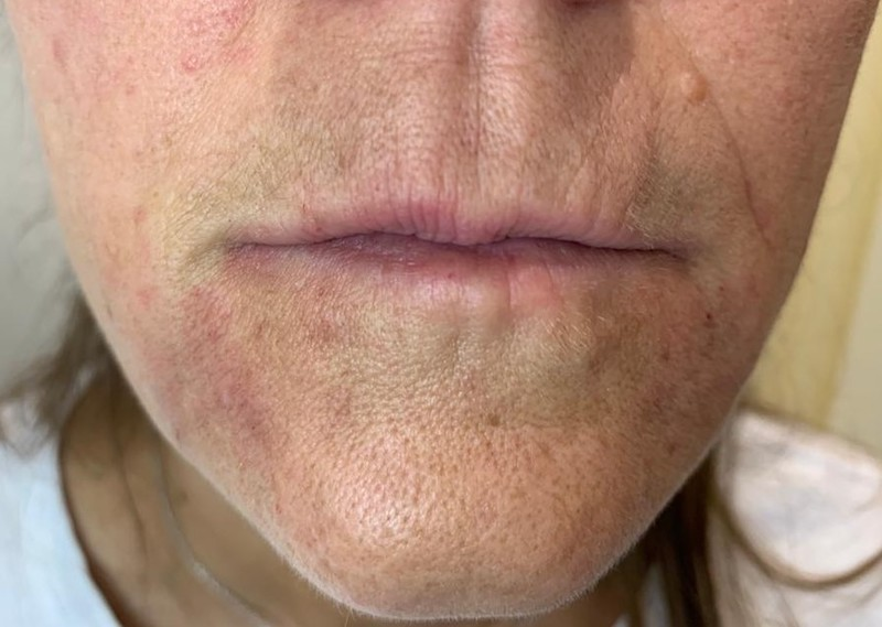 Thin Lips condition | Dermasurge Clinic | Harley st.