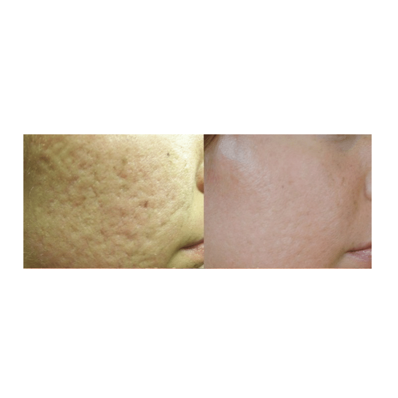 Acne-Scarring-Dermasurge-Clinic
