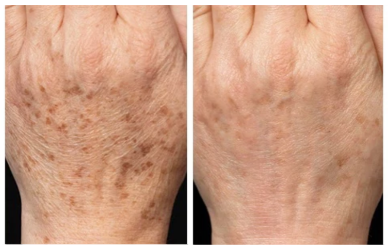Age-Spots-dermasurge-clinic-london