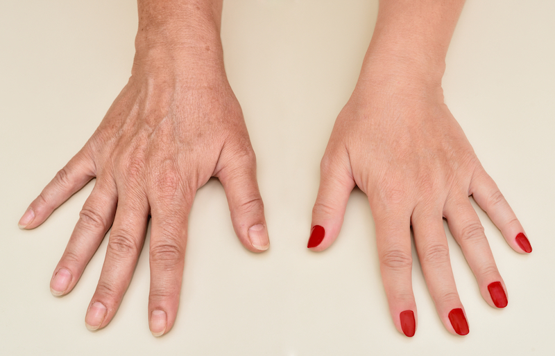 Ageing Hands Condition | Dermasurge Clinic | Harely St