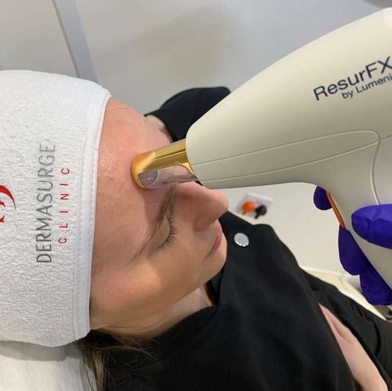 Laser Peels for Acne Scarring