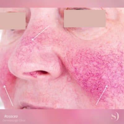 rosacea patient image