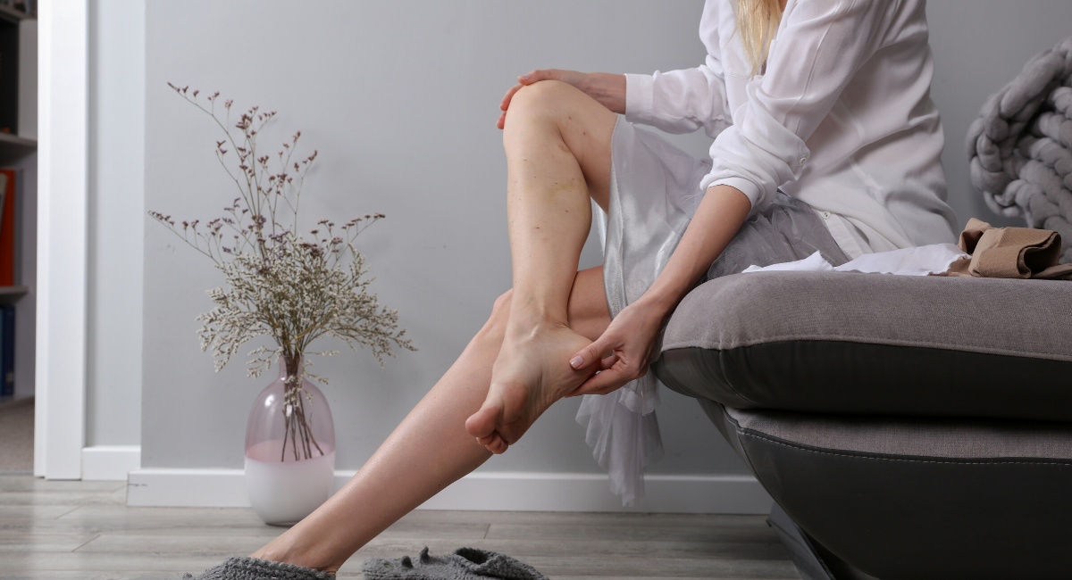 Sclerotherapy – Leg Vein Removal.