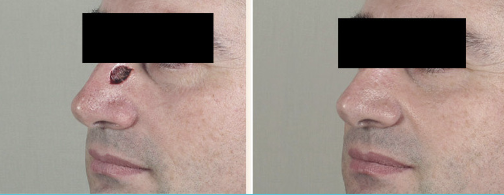skin cancer before and after