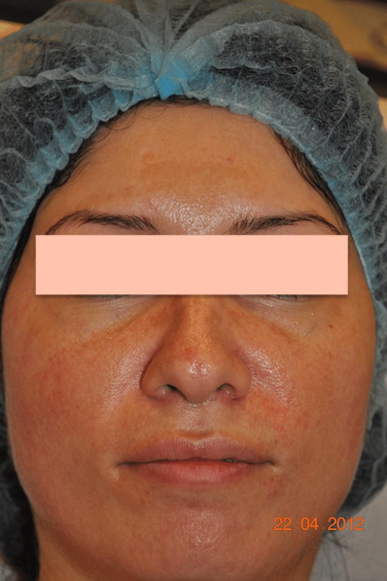 Melasma-condition-dermasurge-clinic-harley-street