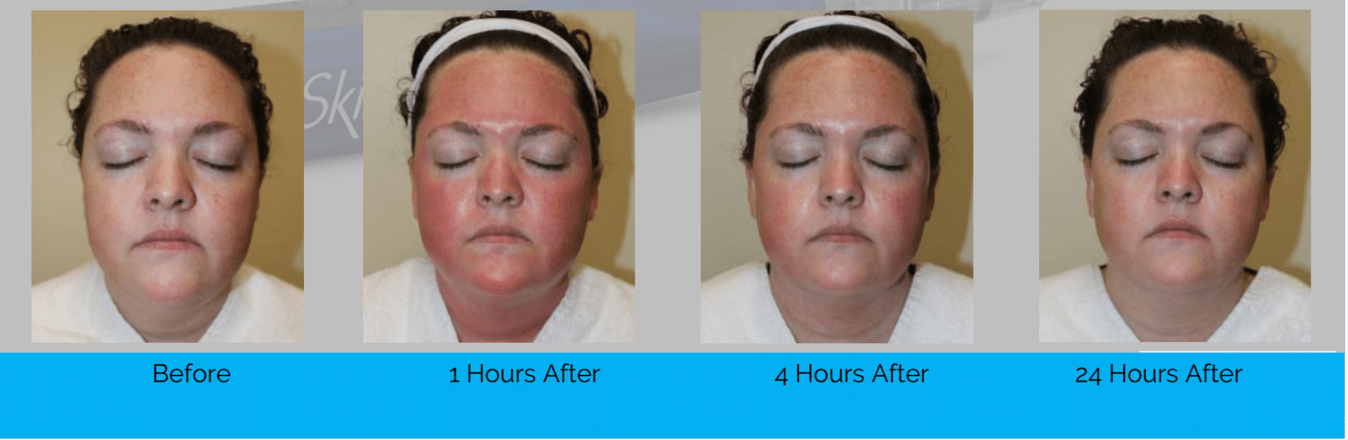 microneedling procedure using SkinPen images straight after 1