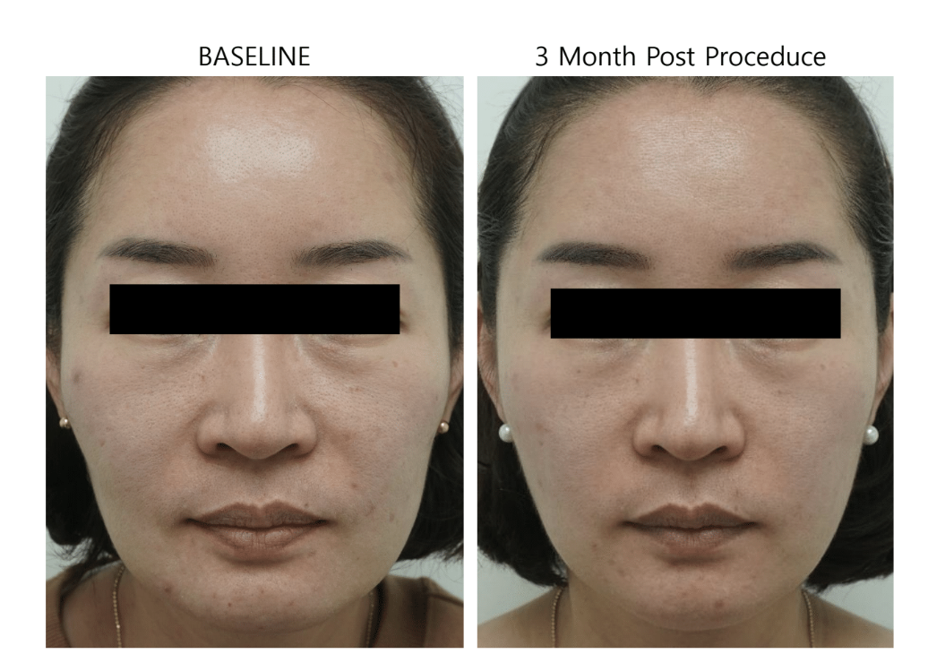 ultraformer 3 reform face before and 3 months post procedure
