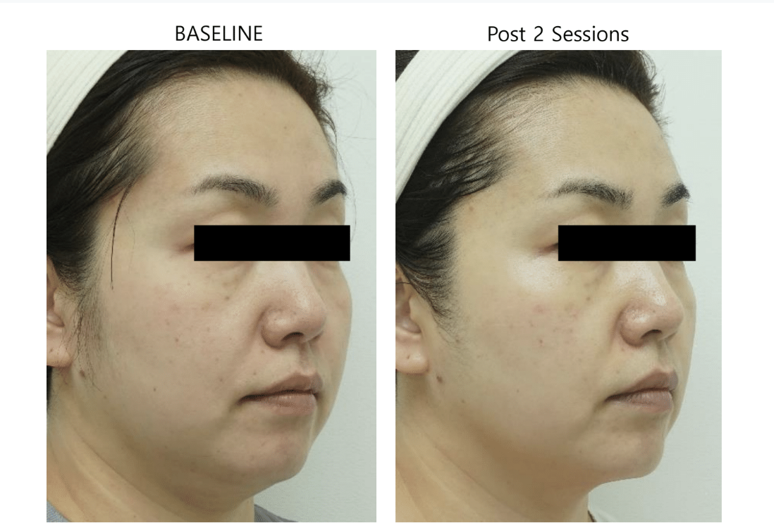 ultraformer 3 face before and post 2 sessions