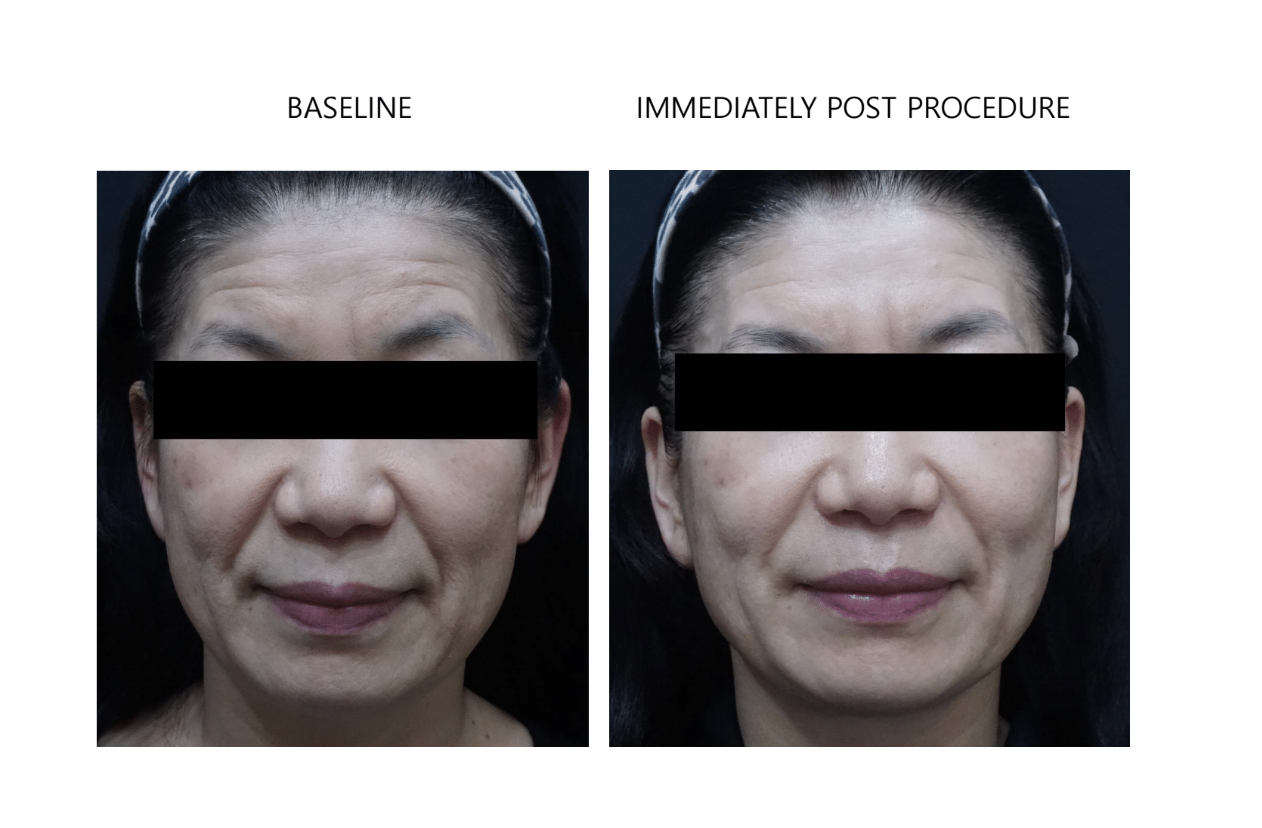 ultraformer 3 face before and after immediately
