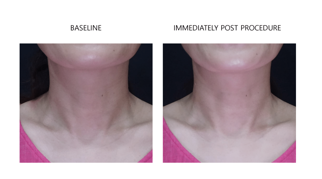 ultraformer 3 neck before and after immediately