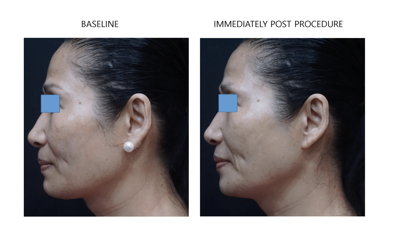 ultraformer 3 chin before and after immediately