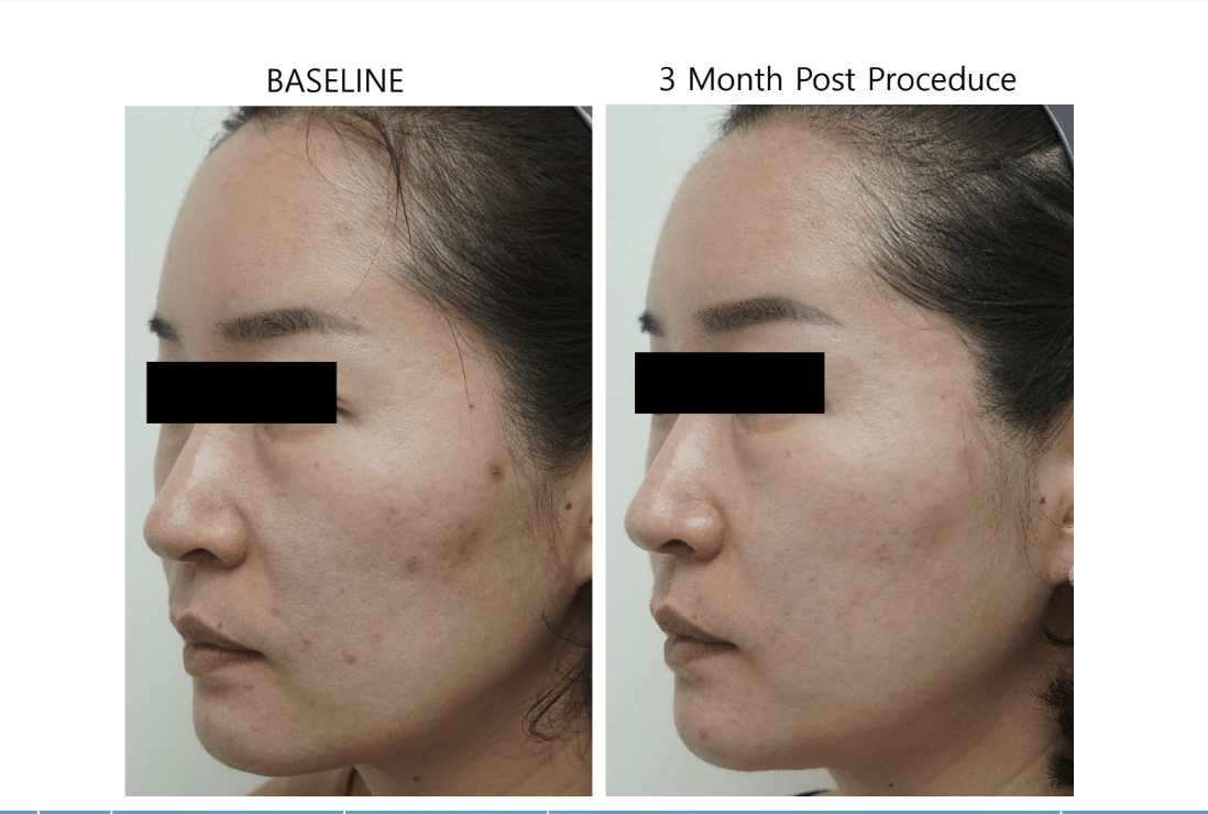 ultraformer 3 face pores before and 3 months after