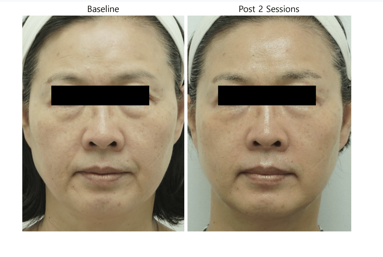 ultraformer 3 reform face before and post 2 sessions 2