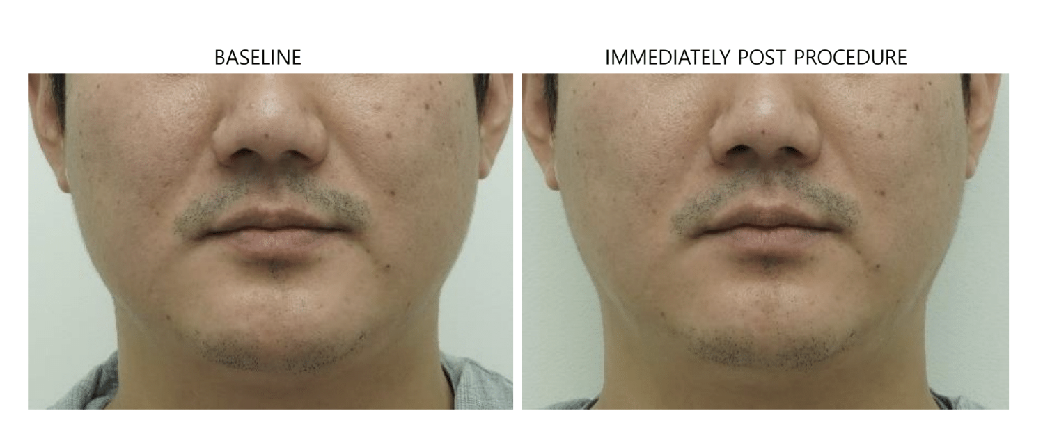ultraformer 3 man chin before and after