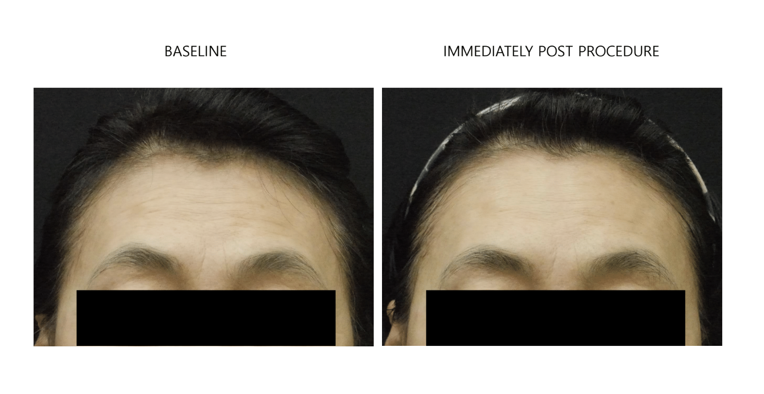 ultraformer 3 forehead before and after