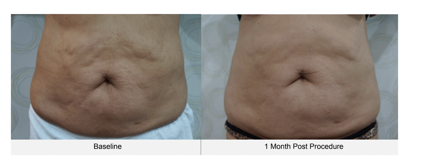 ultraformer belly before and 1 month after