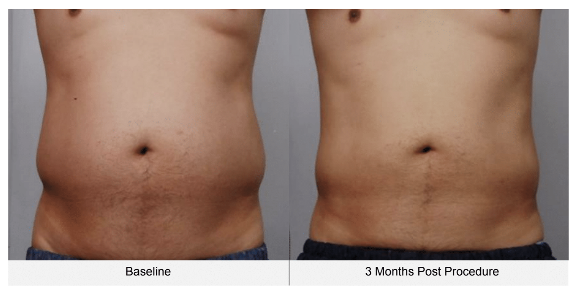 ultraformer 3 man belly before and 3 months after
