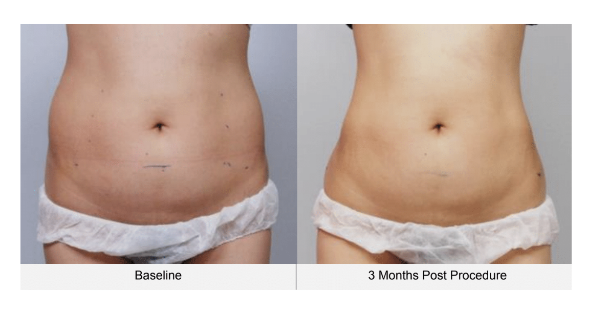 Ultraformer 3 women belly before and 3 months after
