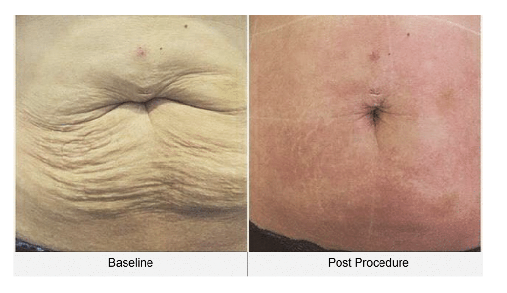 Ultraformer 3 stomach before and after