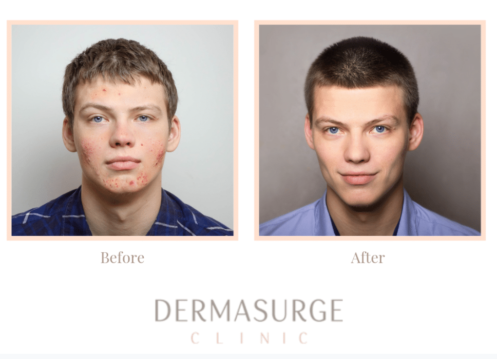 teenage acne patient before and after image