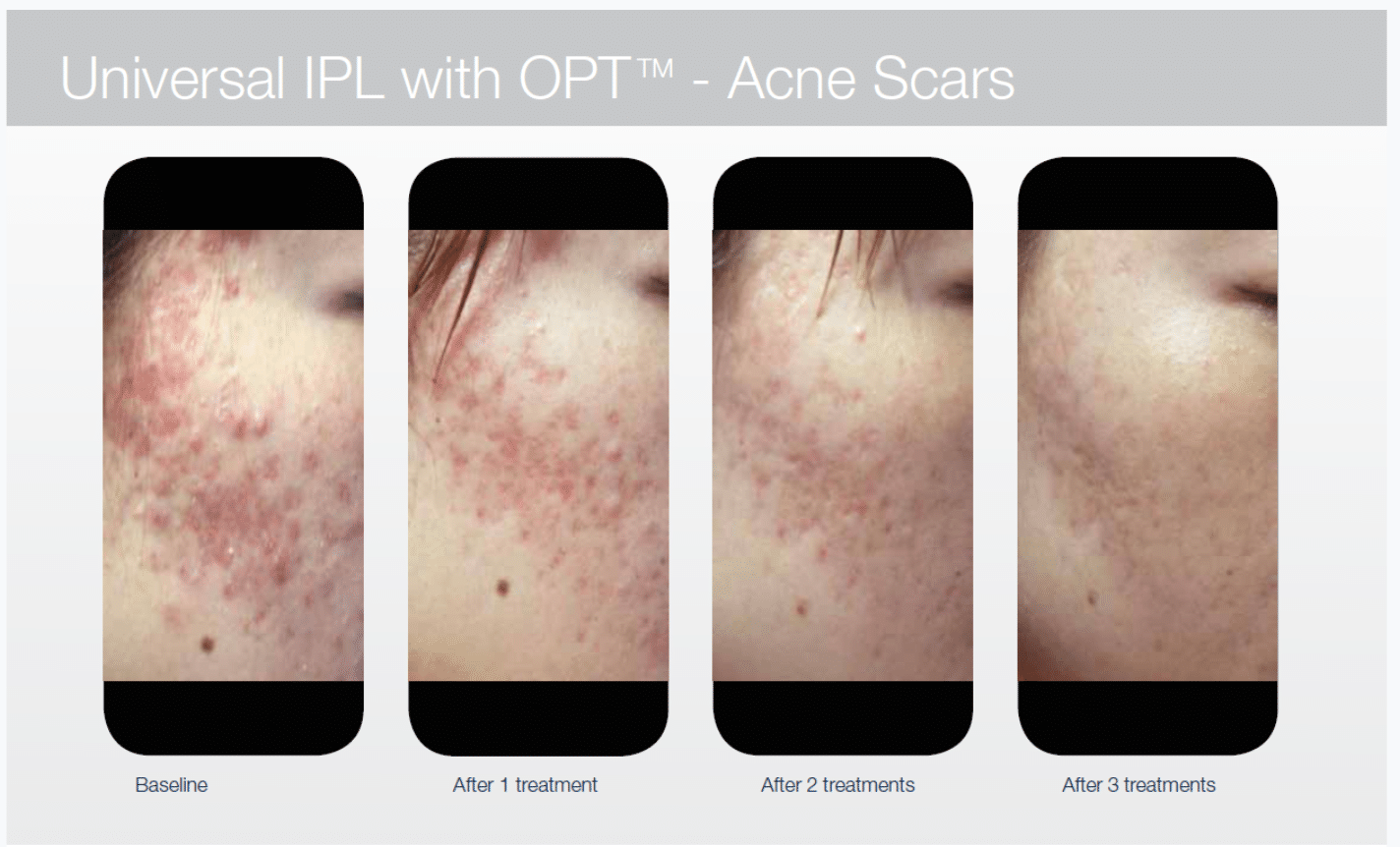 acne scars treatment using Ipl before and after images