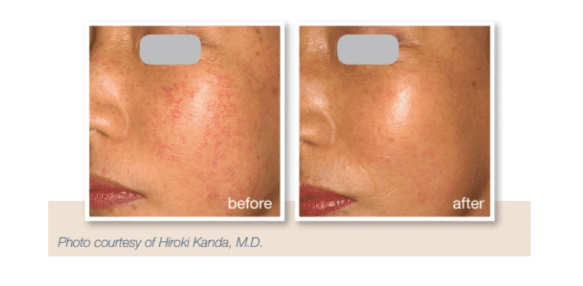 ipl-treatment-for -rosacea-before-and-after
