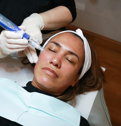 microneedling treatment using skinpen at Dermsurage