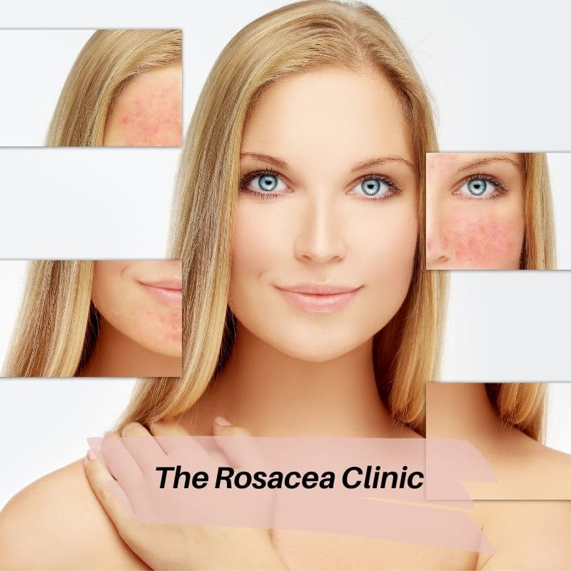 The Rosacea Clinic