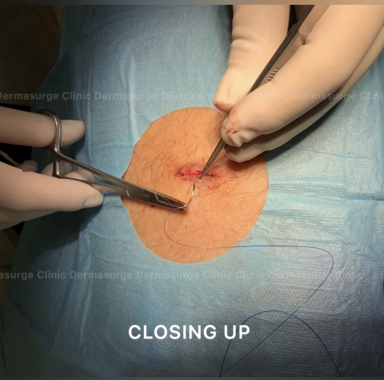 cyst: closing up