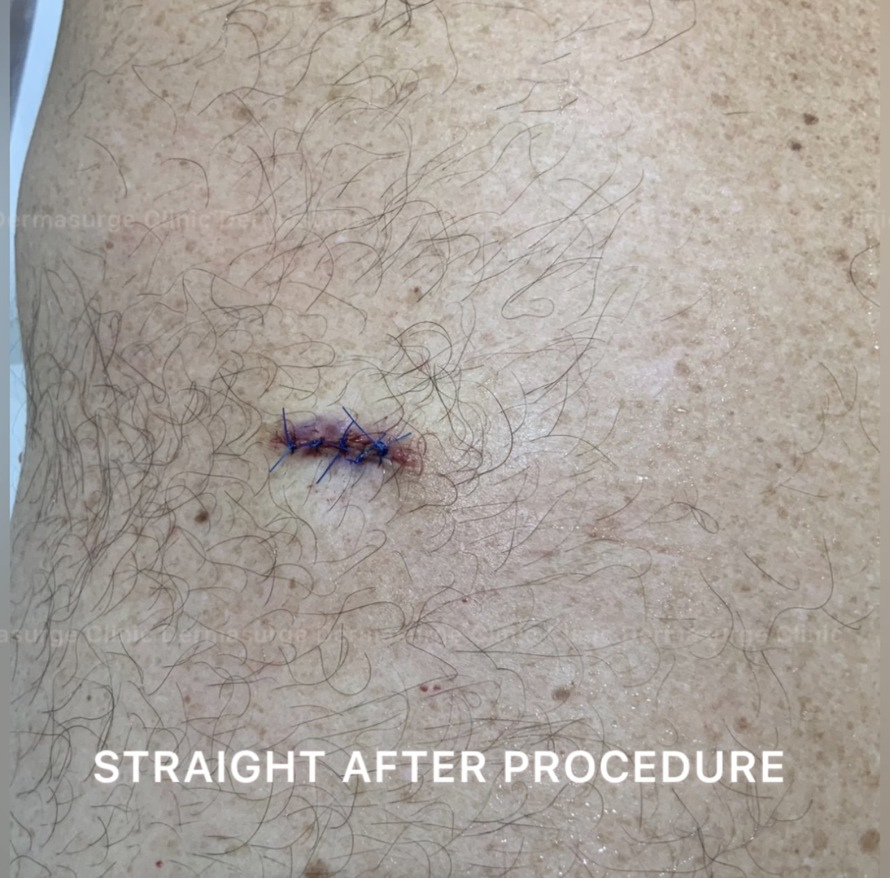 cyst: straight after procedure