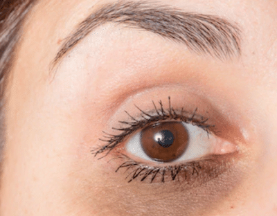 dark-circles-around-eyes-condition-dermasurge-clinic-london-harley-street