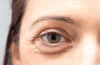 eye-bags-around-eyes-condition-dermasurge-clinic-london-harley-street