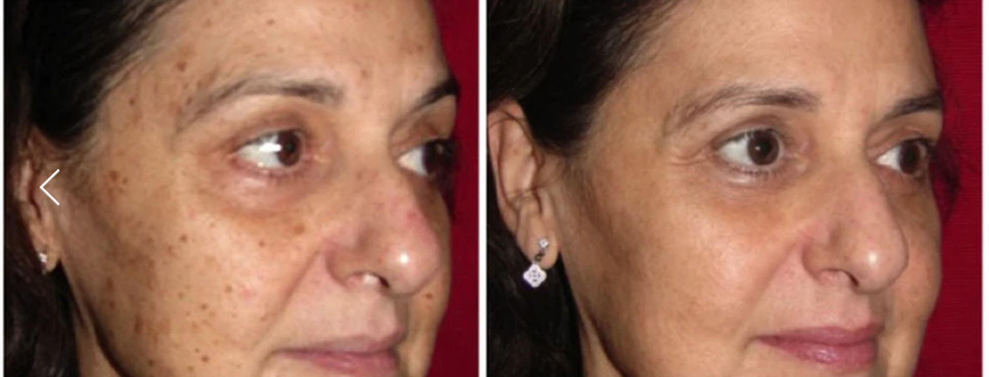 Laser Skin Resurfacing London