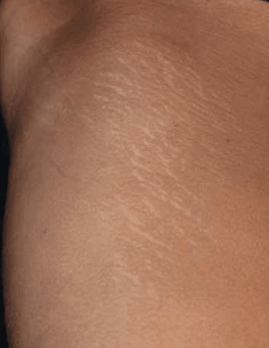 Laser Stretch Mark Removal London