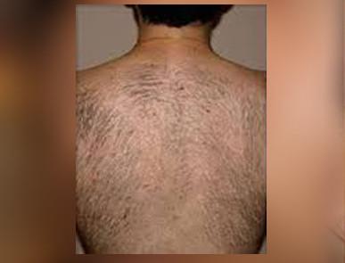 unwanted hair treatment dermasurge clinic london