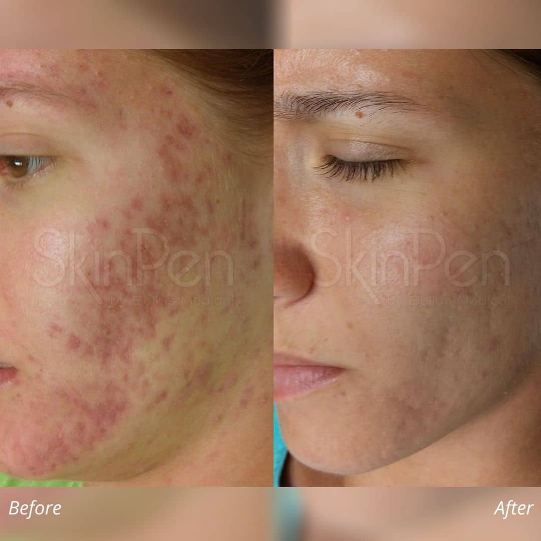 micro-needling using Skinpen before and after image 2