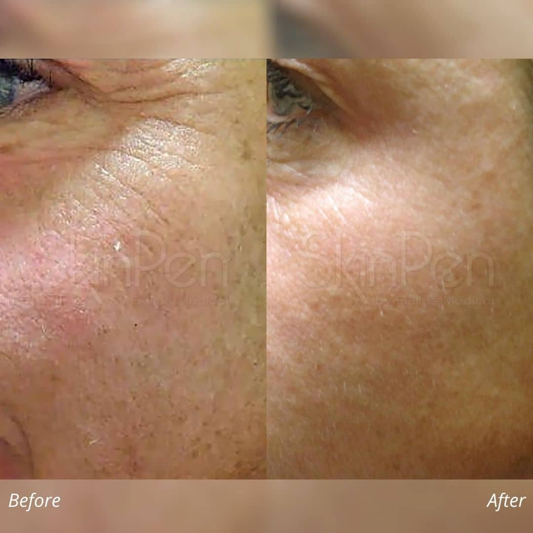 micro-needling using Skinpen before and after image 3