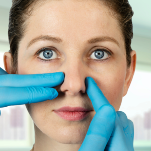 Nose Correction Using Fillers