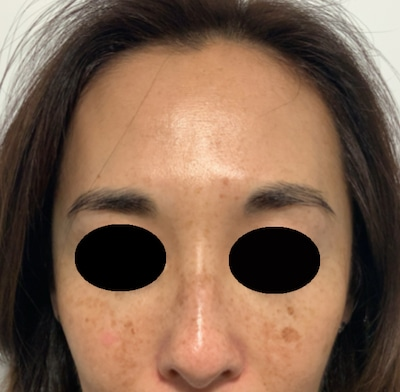 pigmentation-condition-dermasurge-clinici-london-harley-street